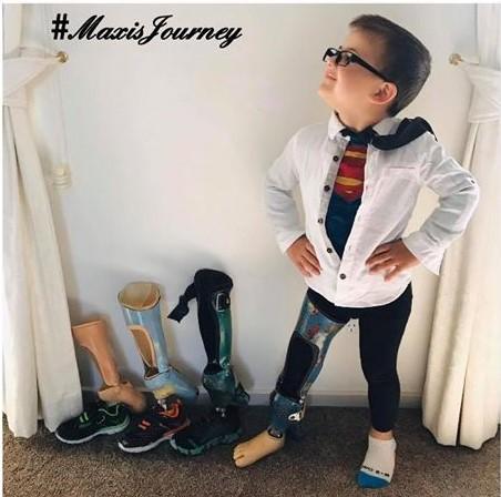 Maxi's Journey (Osteosarcoma Survivor)
